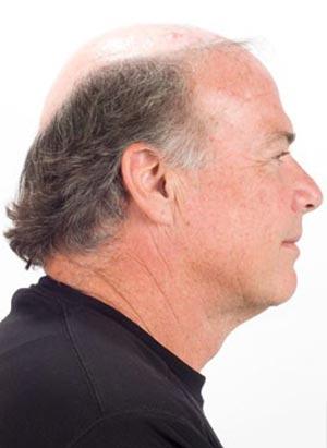 hombre calvo perfiles