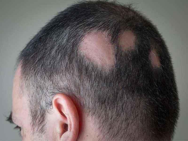 tratamiento de la alopecia areata