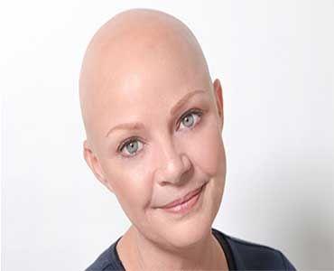 Qué tipos de alopecia existen