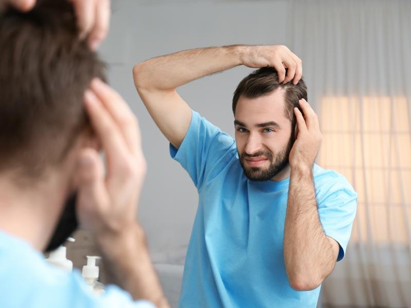 Qué es bueno para la caída del cabello en los hombres