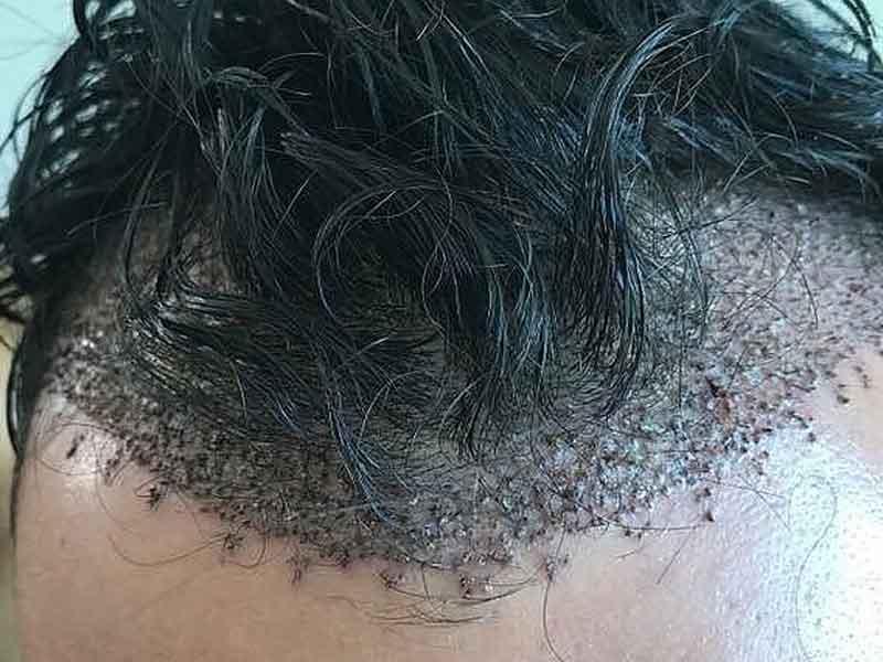 precios del trasplante de cabello